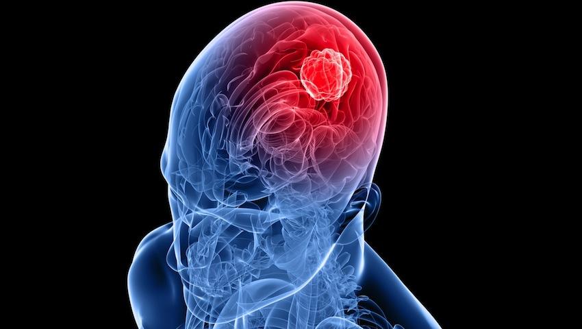 Ce se intampla cu creierul tau cand consumi alcool?